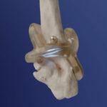 Braccio di un bimbo guarito dopo 10 anni grazie alla stampa 3D